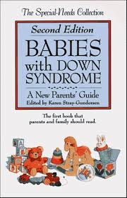 B3.001.1: BABIES WITH DOWN SYNDROME